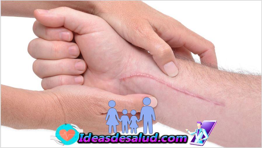 ¿Cómo facilitar el proceso de cicatrización?