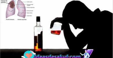 Cuáles son los tipos de cáncer que puede desencadenar el consumo de alcohol
