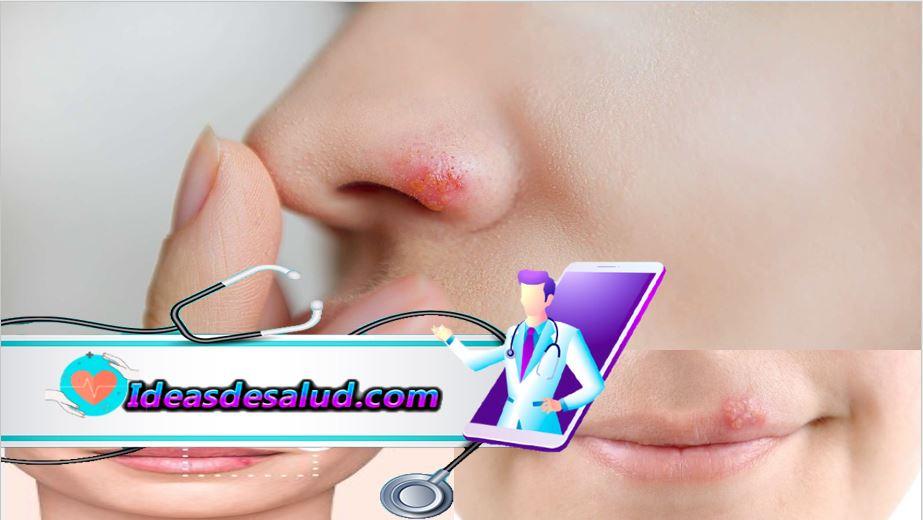 Remedios caseros del herpes de la nariz