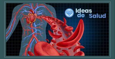 Anemia, ¿Cuales son los síntomas, causas y tratamiento?