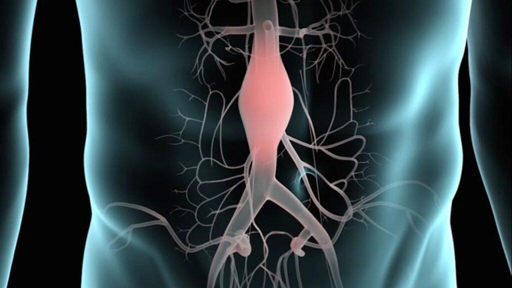Aneurisma aórtico, síntomas y tratamiento