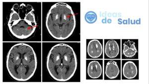 Causas de la calcificación del cerebro