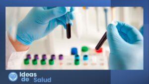 ¿Cómo se hace el diagnóstico del citomegalovirus?