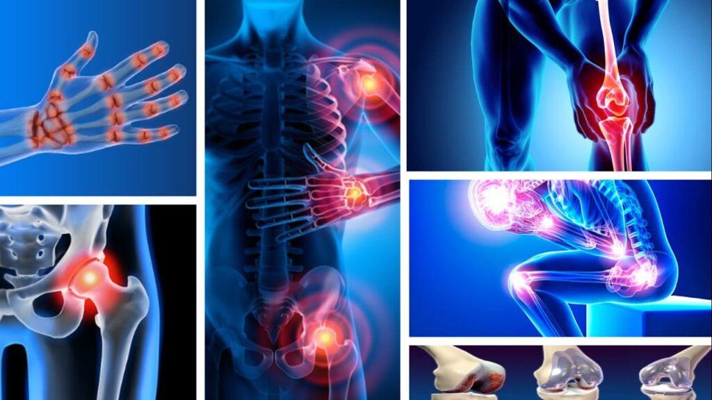 ¿Cómo sé si tengo artrosis? ¿Cuáles son los síntomas?