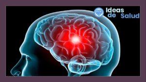 ¿Cómo tratar una migraña con aura?