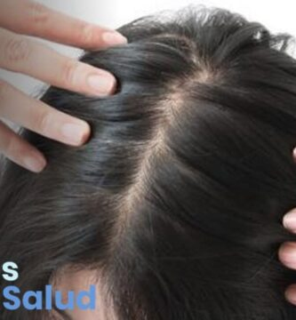 ¿Cuál es el tratamiento para la foliculitis en el cuero cabelludo?