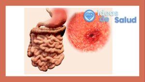 ¿Cuál es la diferencia entre la gastritis erosiva o pangastritis y la enantematosis?