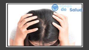 ¿Cuáles son las causas de la foliculitis en el cuero cabelludo?