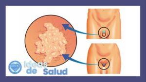 ¿Cuáles son las posibles complicaciones del herpes genital?