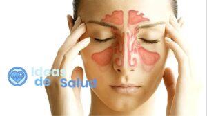 ¿Cuáles son los principales síntomas de la sinusitis?