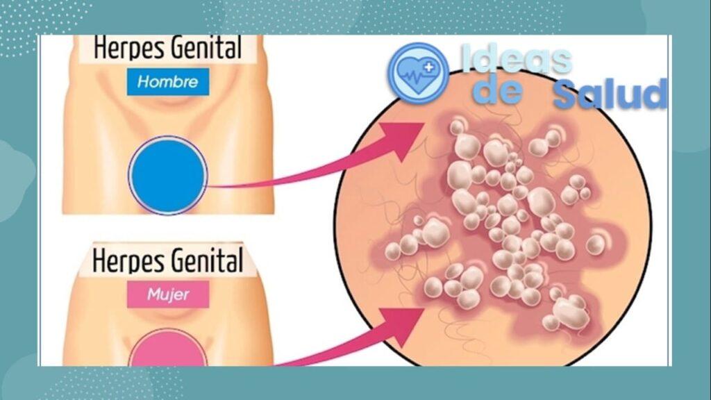 ¿Cuáles son los principales síntomas del herpes genital?