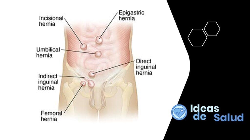 ¿Cuáles son los tipos de hernia?