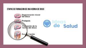 ¿Cuáles son los tipos de hernia de disco?