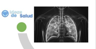 Diferencias entre la amigdalitis, la faringitis y la laringitis