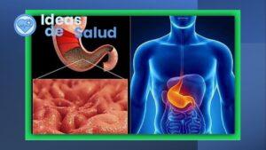Gastritis y pangastritis crónica