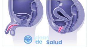 Infección urinaria (uretritis)