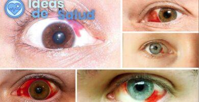 Me golpearon en el ojo y lo tengo mancharon de sangre. ¿Qué puede ser?