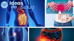 Otras causas de ardor o dolor anal al evacuar