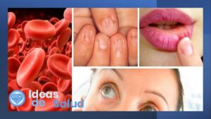 ¿Qué causa la anemia?