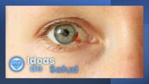 ¿Qué causa la mancha de sangre en el ojo?