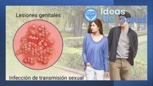 ¿Qué es el herpes genital?