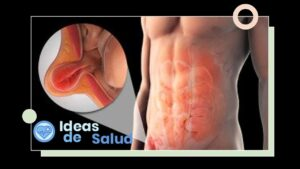 ¿Qué es una hernia?