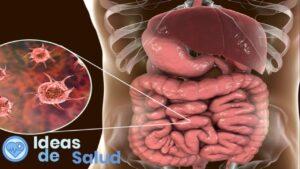 ¿Qué es una infección intestinal?