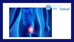 Qué hacer en caso de presentar síntomas de cáncer de recto: