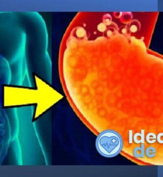 ¿Qué puedo hacer para aliviar la acidez estomacal?