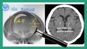 ¿Qué son las calcificaciones cerebrales?