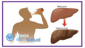 Se debe detener el consumo de alcohol, aunque no sea frecuente.