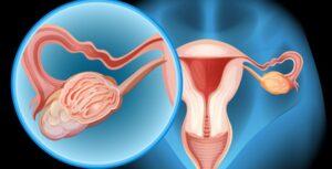 ¿Siempre es necesaria la extirpación de todo el ovario para eliminar un quiste?