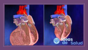 Síndrome de bajo gasto cardíaco