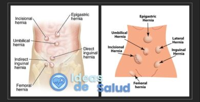 ¿Todas las hernias tienen que ser operadas?