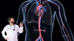 Tratamiento del aneurisma aórtico